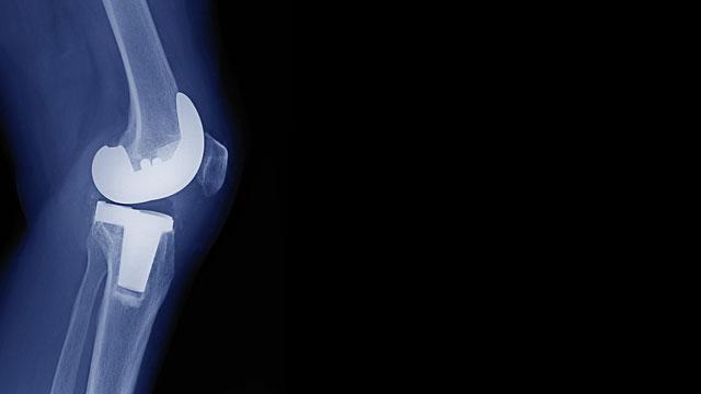 hip-knee-implants.jpg#asset:1284